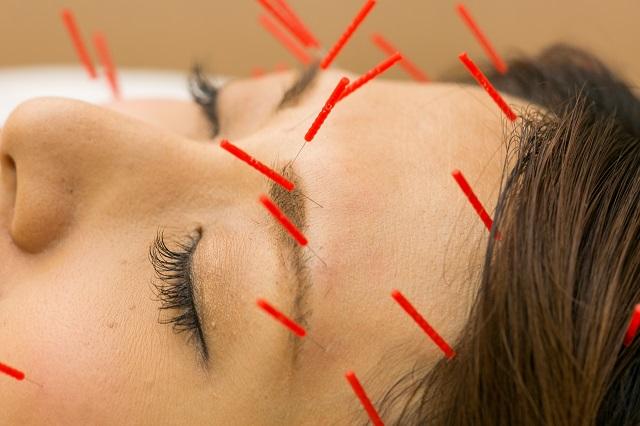 千林大宮駅しおかわ鍼灸院の美顔針の施術画像