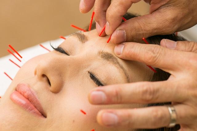 大阪市しおかわ鍼灸院のアンチエイジング効果のある美容針の施術画像