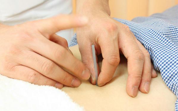千林商店街しおかわ鍼灸整骨院の鍼灸治療の画像