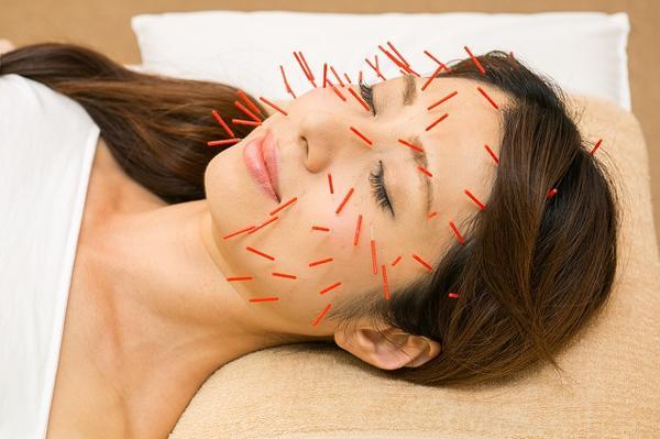 大阪市旭区しおかわ鍼灸接骨院の美顔鍼の施術画像